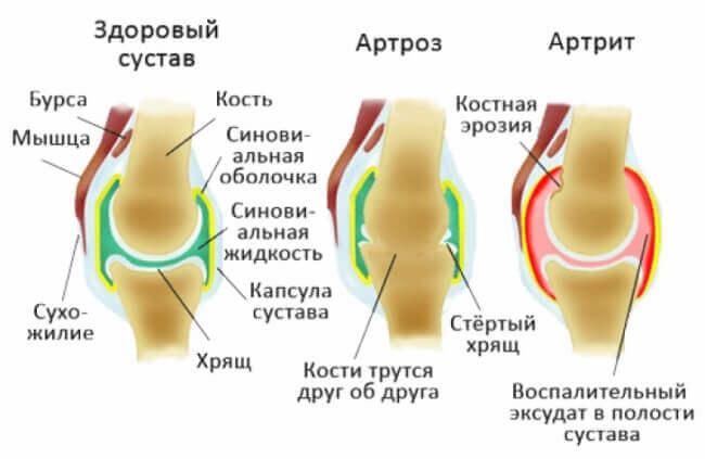 как выглядит артрит у собаки